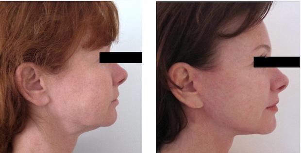 Autre résultat d'un lifting de l'ovale du visage