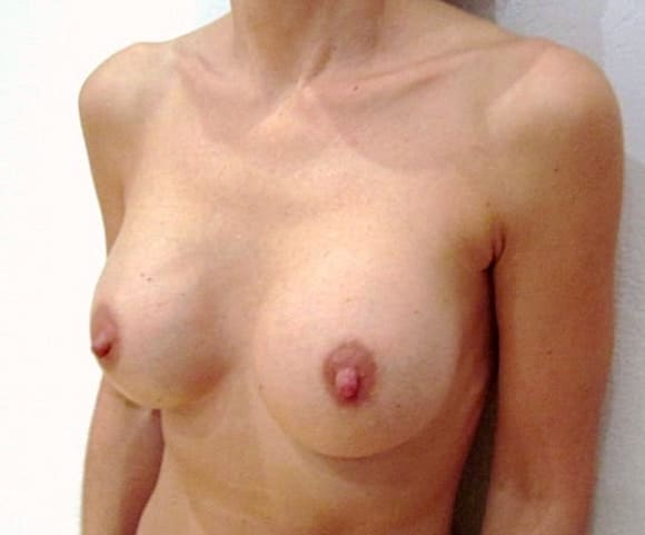 Plis et vagues à partie supérieure de la poitrine après une pose d'implants