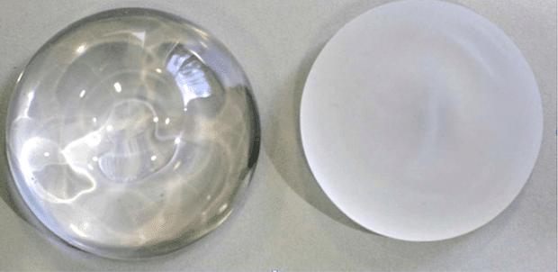 Prothèse mammaire ronde et lisse à gauche et texturée à droite