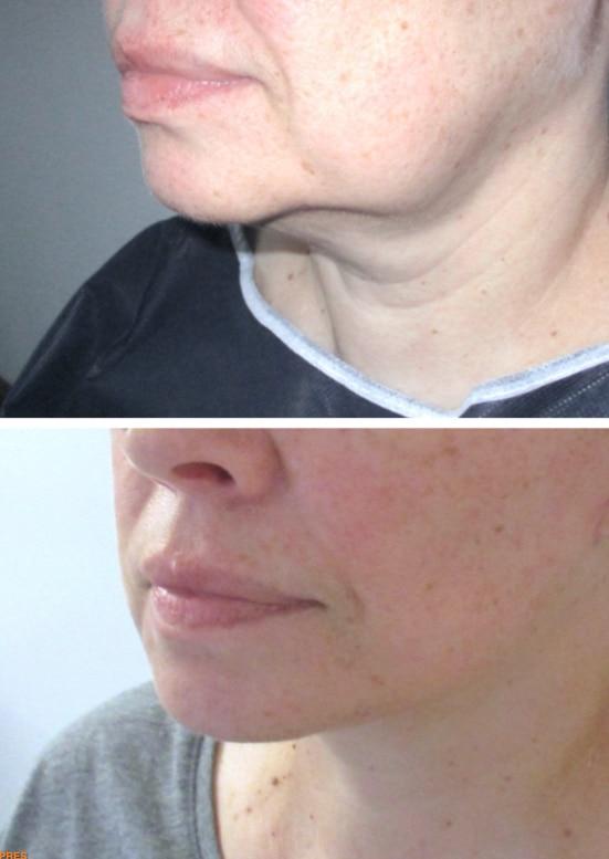Résultat d'un mini-lifting du visage traitant l'ovale: cou, bajoues et rides d'amertumes.