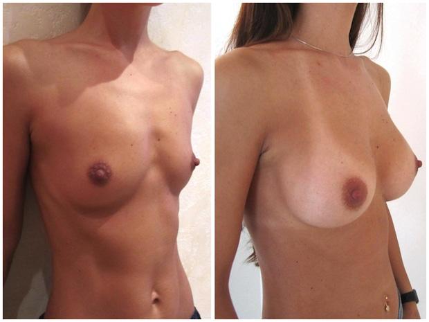 Aspect des cicatrices hémi-aréolaires inférieurs à un an après une augmentation par prothèses