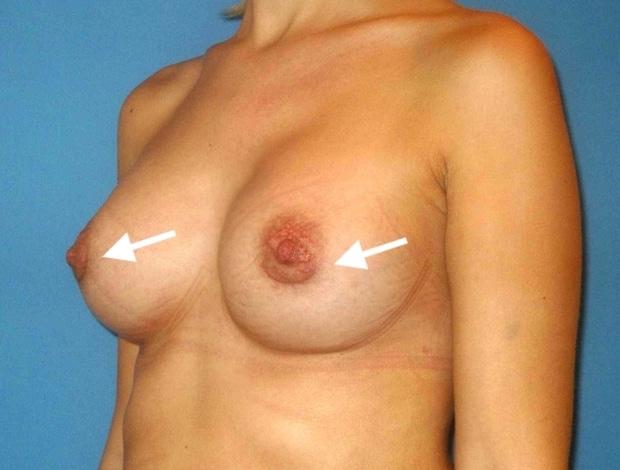 Aspect des cicatrices hemi-aréolaires inférieures à 4 semaines de la pose des implants