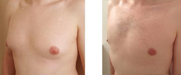 Photos avant-après: gynécomastie et retrait de la glande mammaire avec incision sous l'aréole
