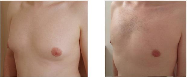 Résultat d'une correction de gynécomastie mixte (glandulaire et graisseuse)
