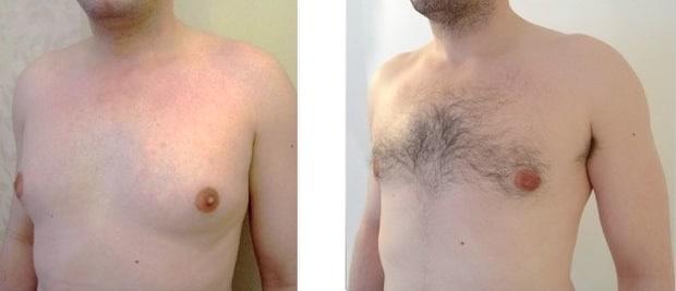 Résultat d'une operation de gynecomastie par liposuccion et retrait du noyau glandulaire