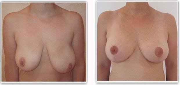 Résultat d'une opération de correction de ptose mammaire